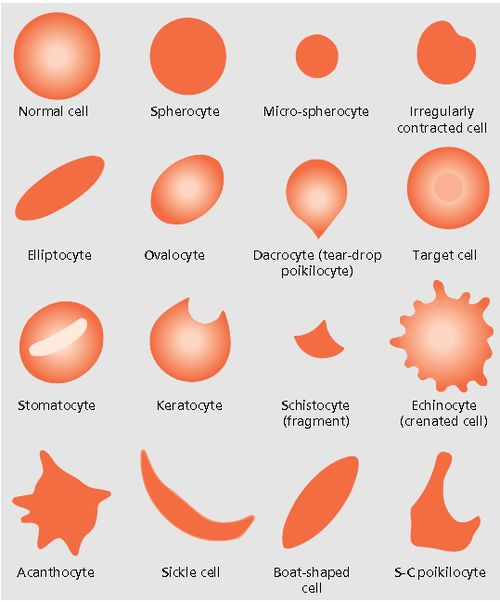 clinical-lab-scientist: Blood Cell Morphology... | Laboratory Science Review