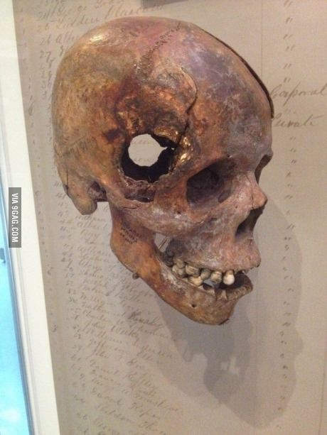 Skull from Civil War. Fatal wound inflicted by exploding 12 pound artillery shell