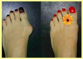 Как избавиться от косточек на ногах народными средствами