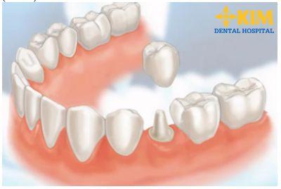 Bọc răng sứ thẩm mỹ chỉnh răng hô nhẹ hiệu quả
