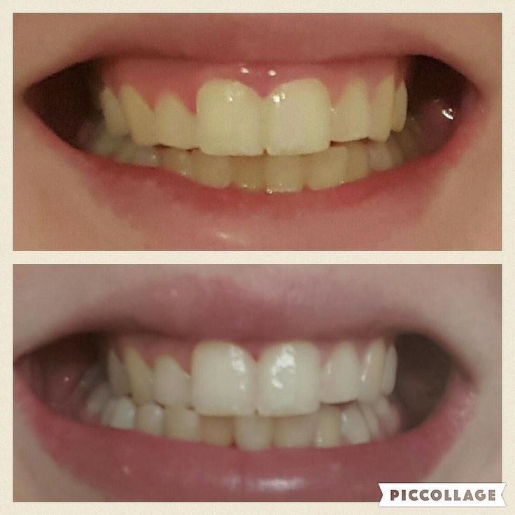 More happy toothpaste results after just 5 uses!! DM us to order yours. Peroxide free so no sensitivity and completely safe to use for children who have there adult teeth  #bigsmile #happy #health #mascara #makeup #teethwhitening #cosmetics #whitesmile #whiteteeth #whitening #customers #fusebeauty #beauty #beautycare #beautyblogger #saturday #happy by fusebeauty_x Our Teeth Whitening Page: http://www.myimagedental.com/services/cosmetic-dentistry/teeth-whitening/ Other Cosmetic Dentistry…