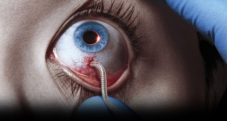 "[TV Review] ""The Strain"": Episode 1.01, 'Night Zero'!"