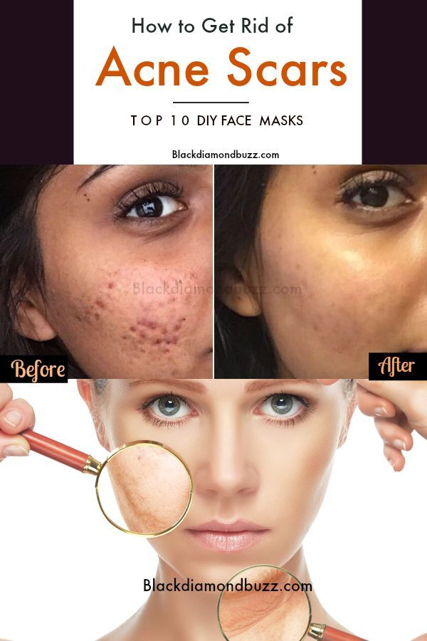 ea18739ad7cb01ec1ffff209911a2e7a - How To Get Rid Of Small Acne Scars On Face
