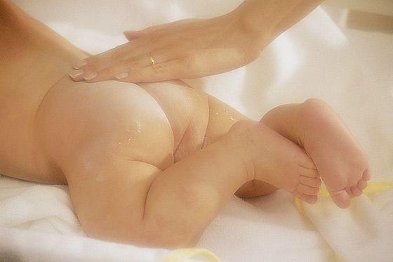 Bei Windeldermatitis Babyhaut besonders pflegen