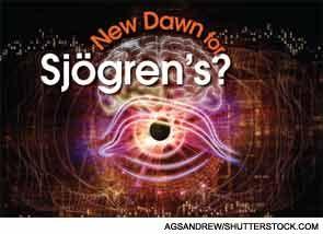 Symptoms of Sjogren's