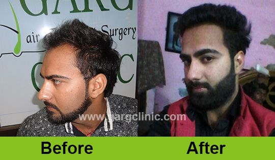 Eyebrows helps in giving a beautiful look to face just like hair so if you are having less hair follicles in your eyebrow then come to #gargclinic and get a #EyebrowHairTransplant