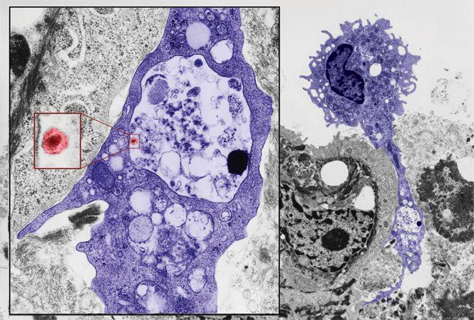 Image: This transmission electron micrograph shows a Langerhans cell (purple) exiting an isolated epithelium to disseminate the HIV-1 infection. A long cytoplasmic extension of the Langerhans cell remains anchored between basal keratinocytes and contains a large vacuole with one HIV-1BaL virion (red) inside. Epithelial sheets were inoculated with the virus by centrifugation (i.e., spinoculation) for 2 hours and then fixed in Karnovsky's fixative for electron microscopy.