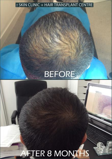 Check here amazing FUE hair transplant result our patient has had.