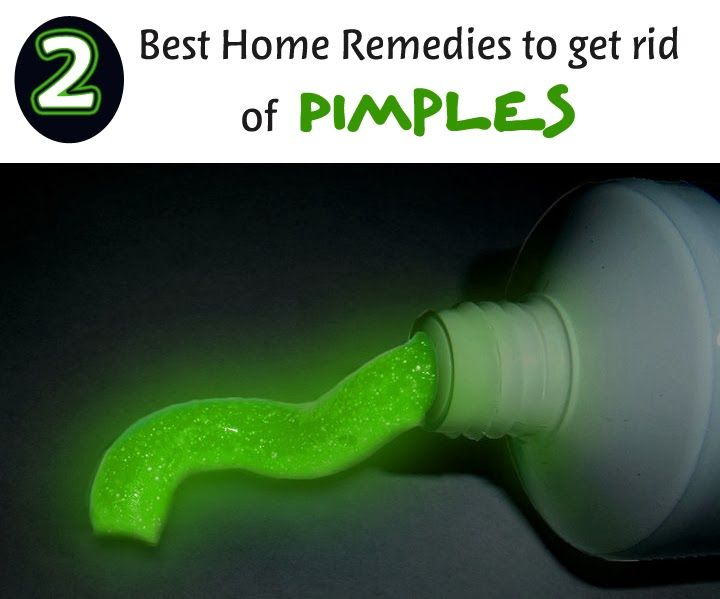 how to get rid of pimples marks in 5 minutes