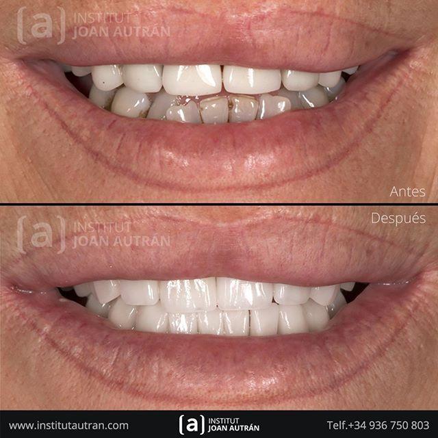 Diseño De Sonrisas Naturales Con El Tratamiento De Carillas Sin Tallado Top Smile Con El Máximo Respeto A Los Dientes Solicite Ahora U Dental Instagram Joan