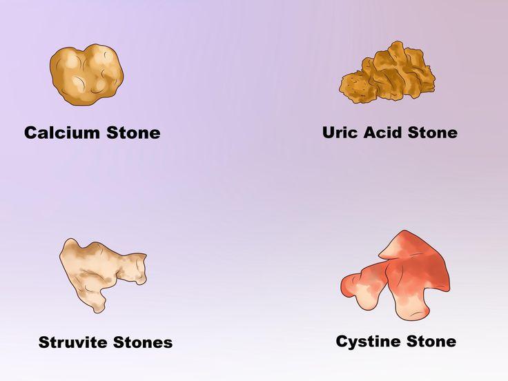 25+ best ideas about Kidney stones symptoms on Pinterest | Kidney ...