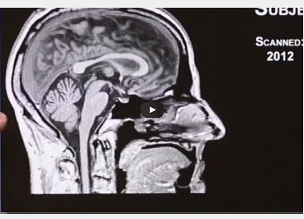 Dr. Erin Bigler explains how Frontal Lobe Damage Impacts Behavior #braininjury  http://braininjuryhelp.com/video-tutorial/frontal-lobe-damage-impacts-behavior-403/