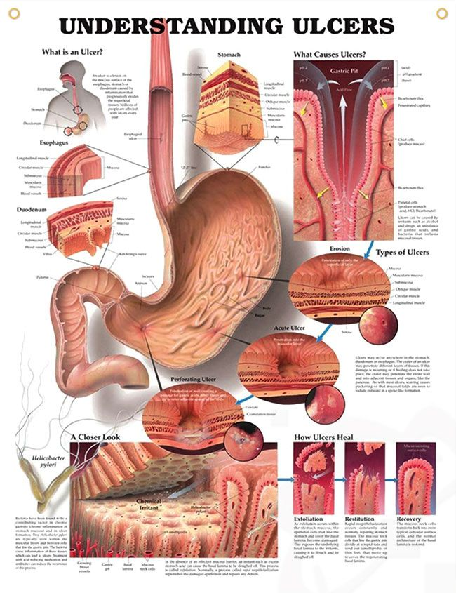 Understanding Ulcers anatomy poster defines ulcer, showing stomach and cross sections of esophagus and duodenum.