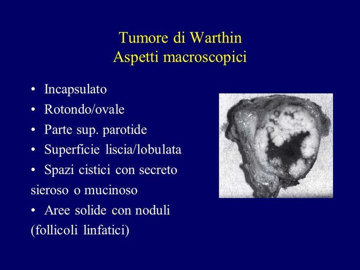 Αποτέλεσμα εικόνας για warthin parotide