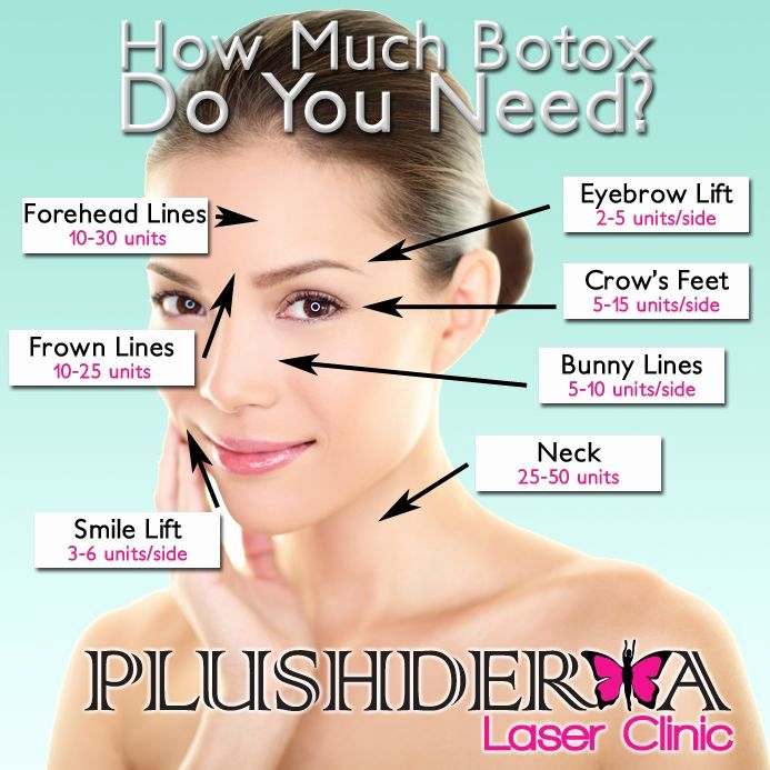 botox injection sites for migraines diagram board nyrania2 shaping your eyebrows eyebrow lift diagram #15