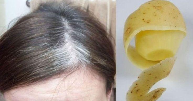 Embora elas sejam eficientes em esconder de forma eficaz os cabelos brancos, a maioria das tinturas também danificam os cabelos já que são r...