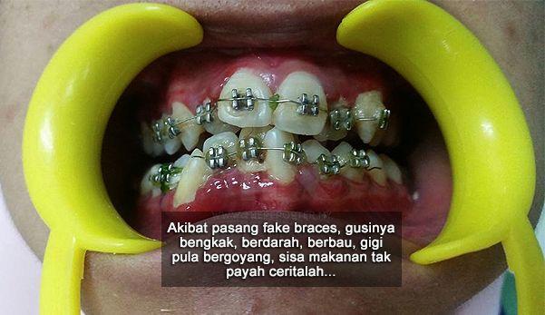 Buy fake braces