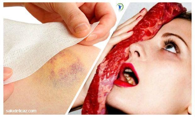 Los moretones son resultado de traumatismos como golpes, caídas o contusiones. Descubre cuales son los mejores remedios caseros para los moretones.