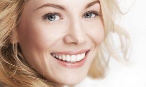 Groupon - Bleaching im Kosmetiksalon Derma Beaute ab 49 € (bis zu 57% sparen*) in Düsseldorf. Groupon Angebotspreis: 49€