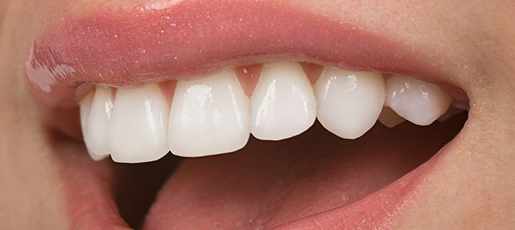 People often complain about a gummy smile despite having perfect and healthy teeth. It is due to the imbalanced gum line that the alignment of the teeth becomes inappropriate and it further ruins the overall look of your smile. http://smilegalleryca.blogspot.com/2013/10/cfcd-for-effective-laser-gum-contouring.html