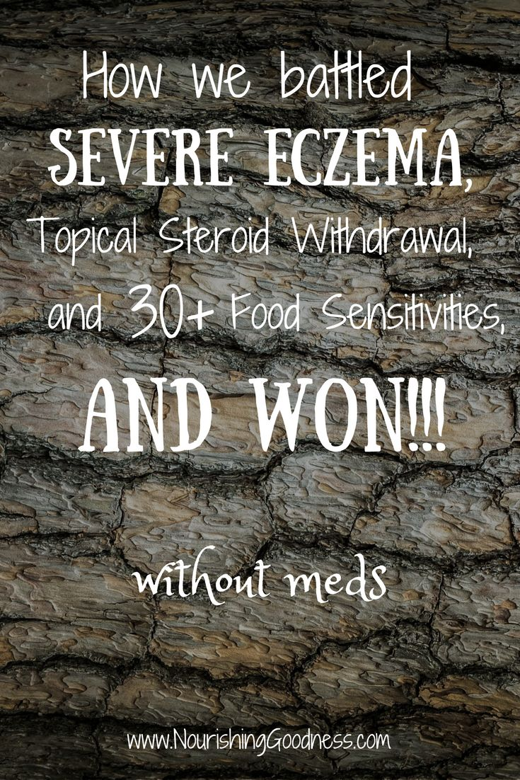 Best 25 Eczema Treatment Ideas On Pinterest Coconut Oil