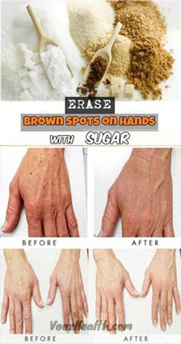 Erase Brown Spots on Hands with Sugar
