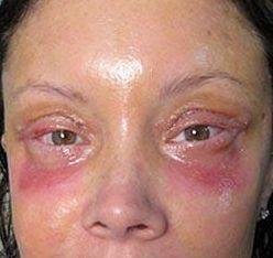 Dangers Of Botox Www Skintots Com Botox Injection