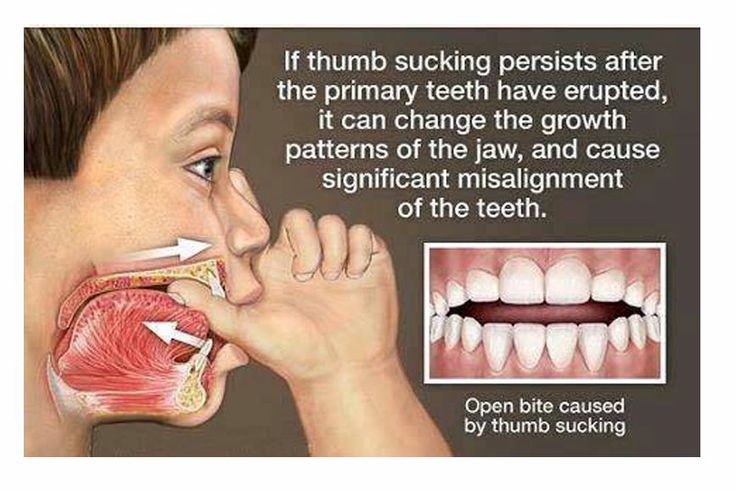 Misalignment of the teeth comes from the behaviour of the