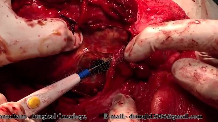 Total Thyroidectomy by Dr Majid Ahmed Talikoti