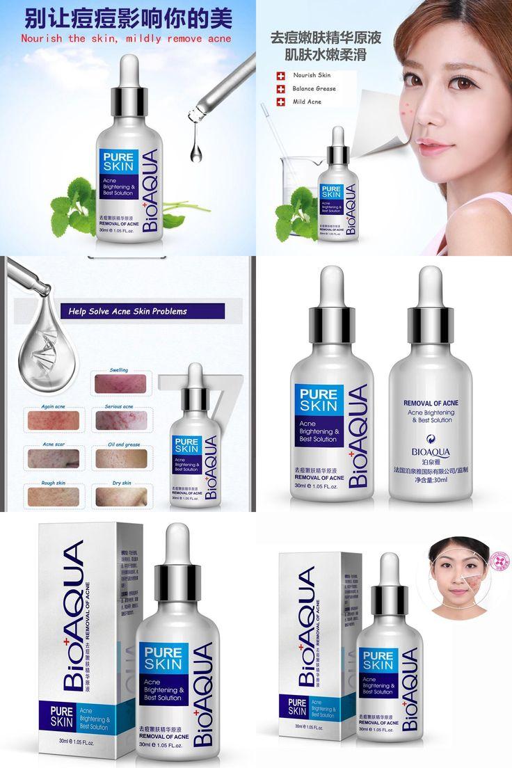 [Visit to Buy] 2017 Anti-acne Essence Liquid Spot Acne Scar Cream Fill Whitening Moisturizing Oil Face Treatment Skin Care Cosmetics 30ml #Advertisement