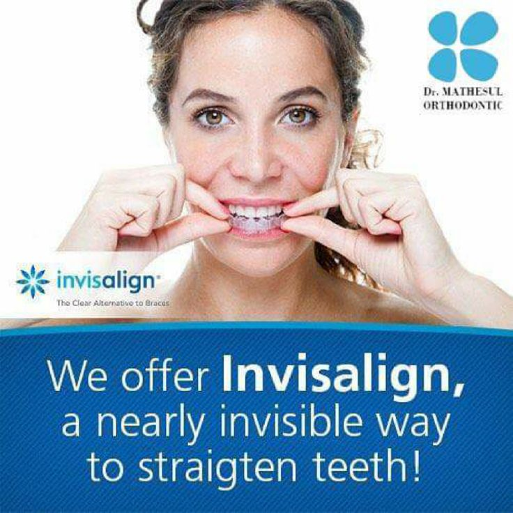Invisalign Invisible Braces Treatment in Pune - Now Affordable EMI - Simply Smiling Opens Up Good Luck in All Aspects of Ur Life ! Latest Research Shows People Who Smile Wider