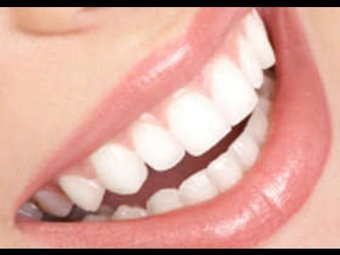 ▶ DIENTES BLANCOS SIN USAR BICARBONATO / RECIPE NATURAL FOR WHITE TEETH - YouTube