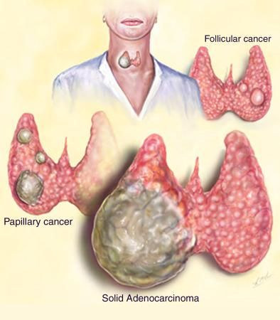 What are the symptoms of thyroid cancer?  Thyroid cancer usually develops slowly and initially does not cause any symptoms. The most common first sign is a small lump in the neck, which is painless. Other symptoms which may develop as the cancer grows include:  Hoarseness or difficulty in speaking in a normal voice. Swollen lymph glands in the neck. Difficulty swallowing or breathing as the cancer presses on the foodpipe or windpipe. Pain in the throat or neck. Note: most lumps in the…