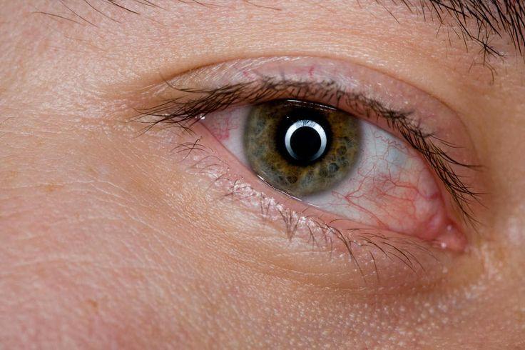 La sensación de ojos cansados se puede aliviar rápidamente gracias a las propiedades antiinflatorias de estos remedios caseros. ¡Apunta!
