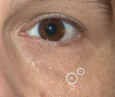 Hrčky pod kožou: Čo môžu znamenať a ako ich odstrániť