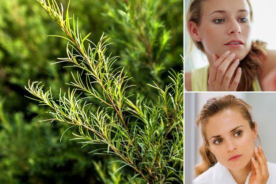 Teebaumöl - Infos über Wirkung und Anwendung