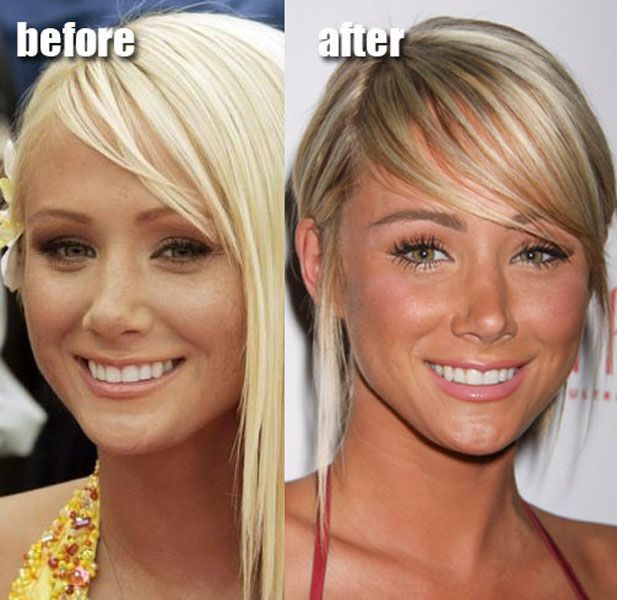 Celebrity Plastic Surgery Before - 57.3KB