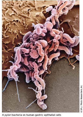 diät bei helicobacter