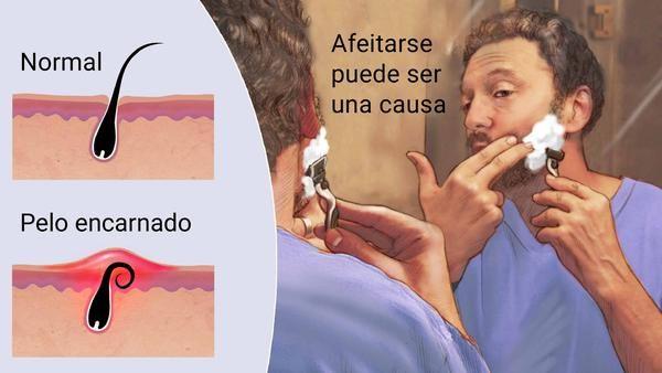 Curiosidades Sobre Salud Vello Encarnado Pelo Encarnado Pelo Afeitado O Extraído Con Pinza Que Crece Hacia Adentro Ingrown Hair Waxing Vs Shaving Skin Bumps