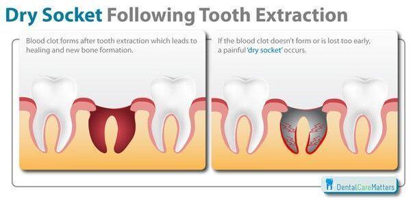 Tricky Tooth Extraction Healing Almond Milk Teethwhiteningatlanta Toothextractionfood Wisdom Tooth Extraction Tooth Extraction Wisdom Teeth