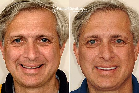 Looking for no grinding Porcelain Veneers or Whatever your problem, the goal of Dr. Sam Muslin treatment is to produce a healthy, stable and well-functioning bite.  Dr. Sam Muslin is a 2016 award winning LA's Best Cosmetic Dentist. For world class treatment visit their website now.  #nogrindingPorcelainVeneers