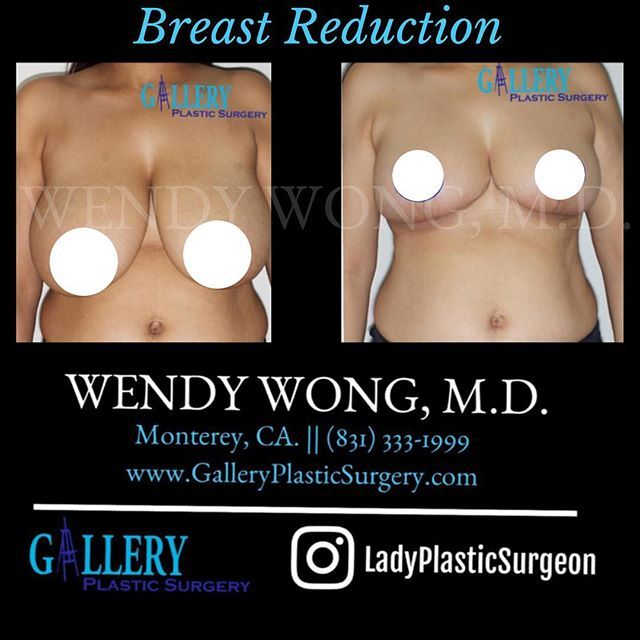 Cost plastic surgery breast reduction