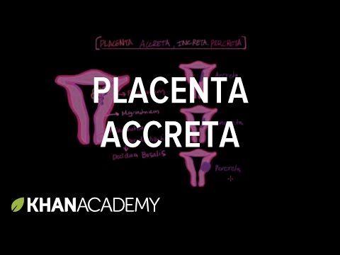 Placenta accreta - YouTube