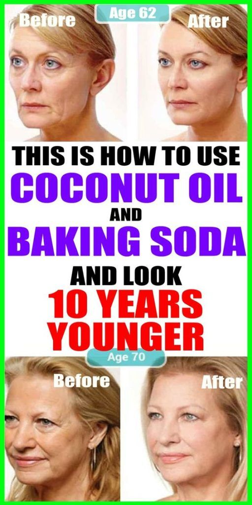 Baking Soda And Coconut Oil Natural Face Cleanser