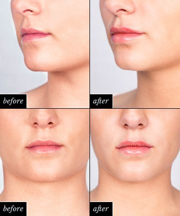 Lip Injections: The Results (and the Price Tag)