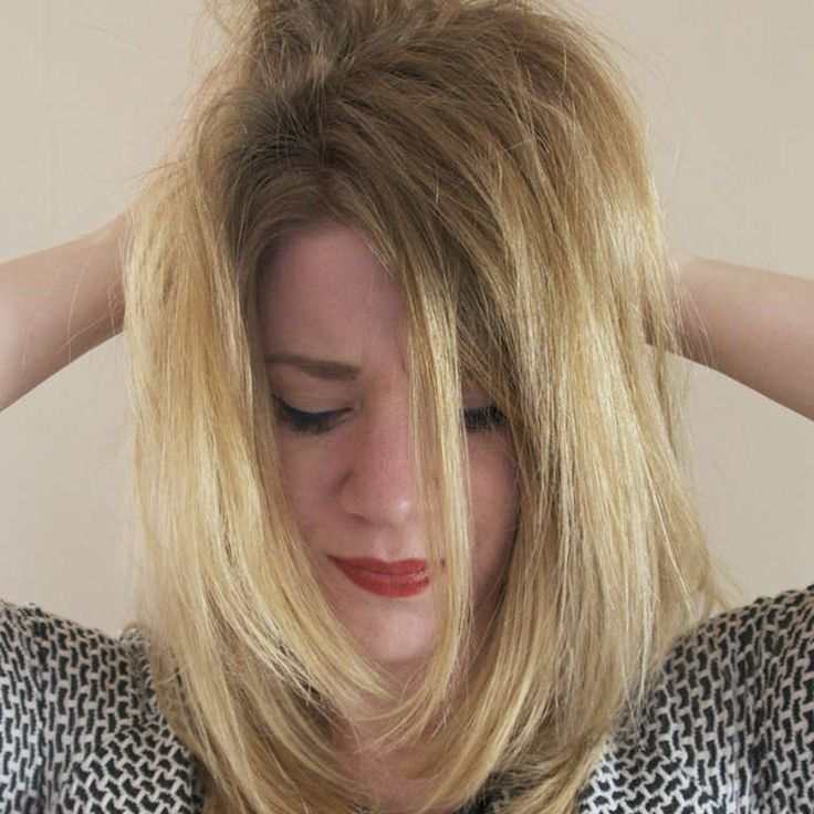 Common Causes Of Itchy Scalp That Will Make You Cringe. Ready to learn more than you ever wanted to know about chronic itchy scalp?