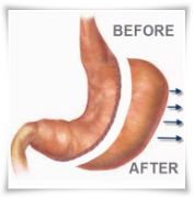 stomach before and after gastric sleeve