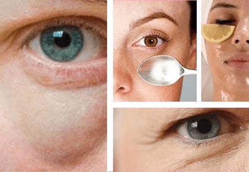 As bolsas abaixo do olhos junto com as olheiras dão ao rosto uma aparência cansada. Confira neste artigo dicas de como tratá-las. Não perca!