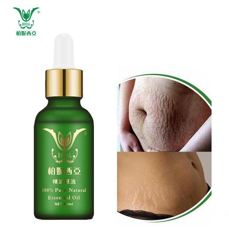 Stretch Marks Remover Essential Oil Skin Care Treatment Cream For Stretch Mark Removal Maternity Slackline For Pregnant Oils