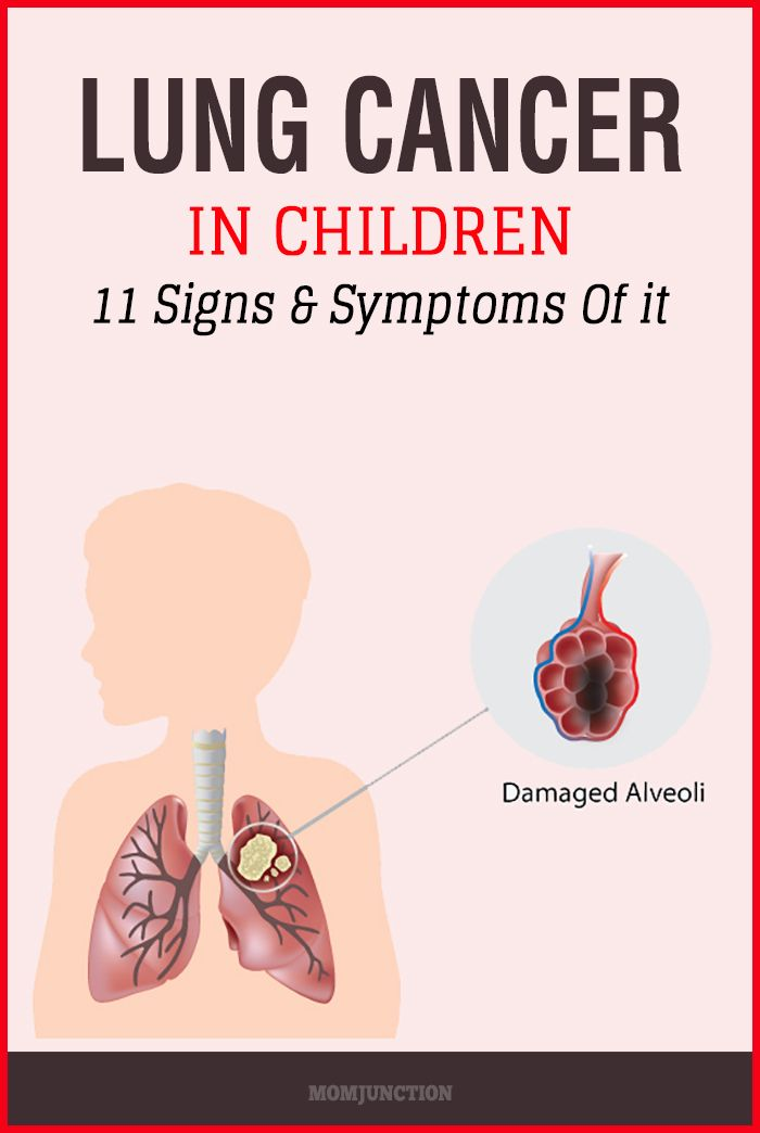 11 Signs And Symptoms Of Lung Cancer In Children